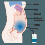Увеличение печени у грудничка: причины и лечение гепатомегалии у новорожденного