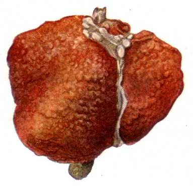 Перерождение печение в цирроз