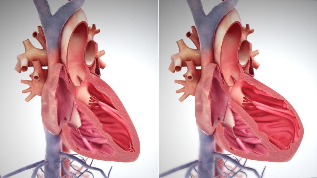 Асцит при сердечной недостаточности