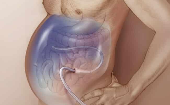 Асцит при циррозе