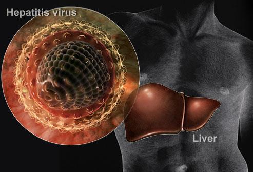 Гепатит А и В: Чем отличаются и чем похожи заболевания, особенности течения и вакцинации