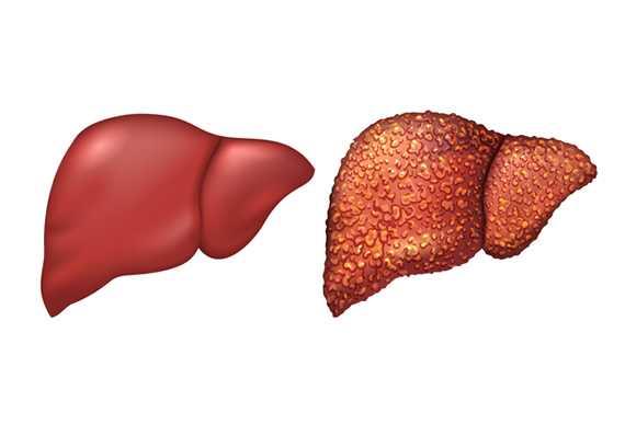 В течение всего нескольких лет без лечения происходят цирротические изменения печени