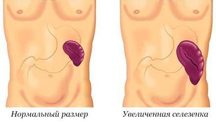 Причины, симптомы и лечение умеренной гепатоспленомегалии
