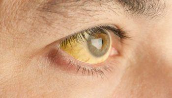 Опасна ли желтуха: какие осложнения и заболевания ее вызывают?