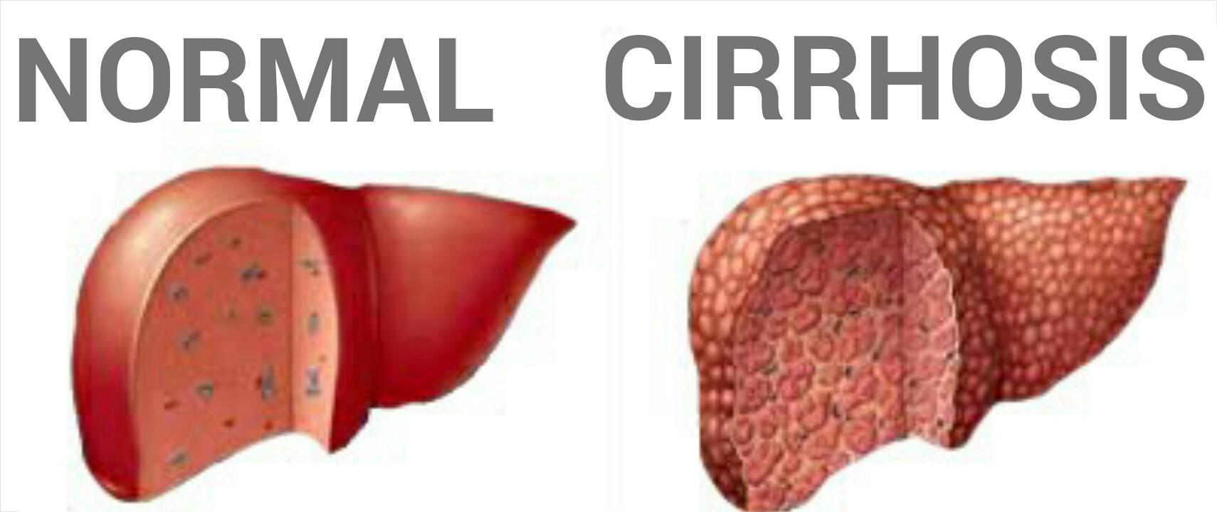 Кардиальный цирроз печени: причины, симптомы, лечение и прогноз